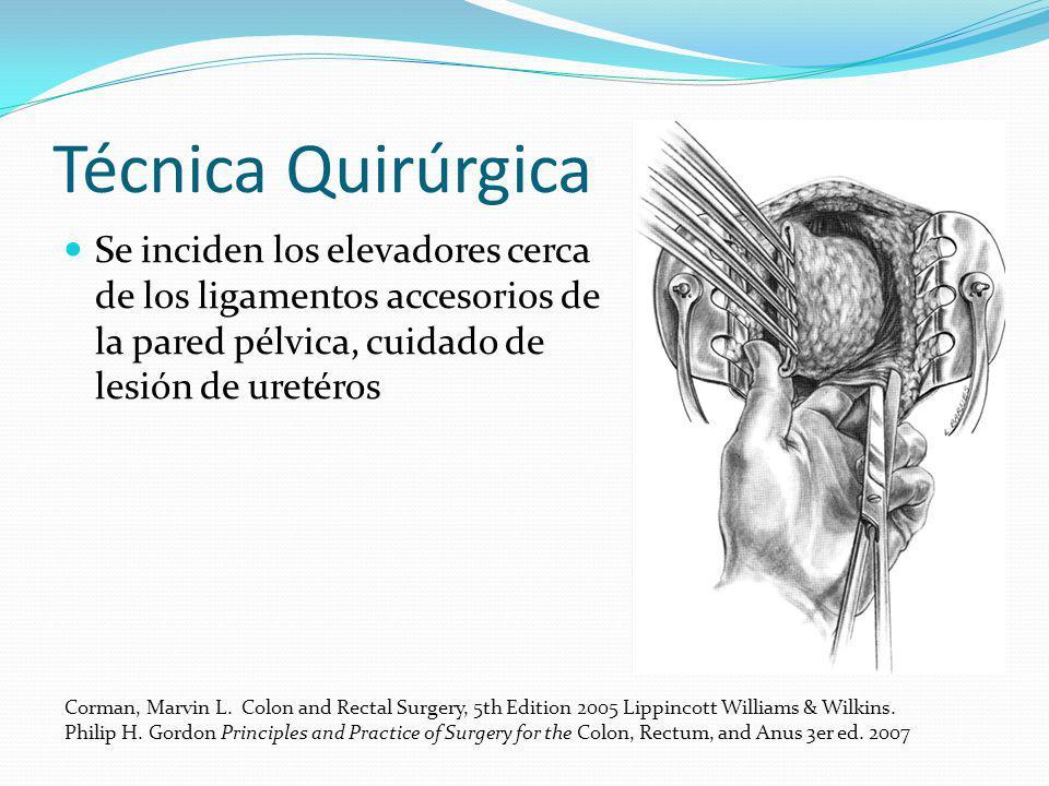 Técnica Quirúrgica Se inciden los elevadores cerca de los ligamentos accesorios de la pared pélvica, cuidado de lesión de uretéros Corman, Marvin L. C
