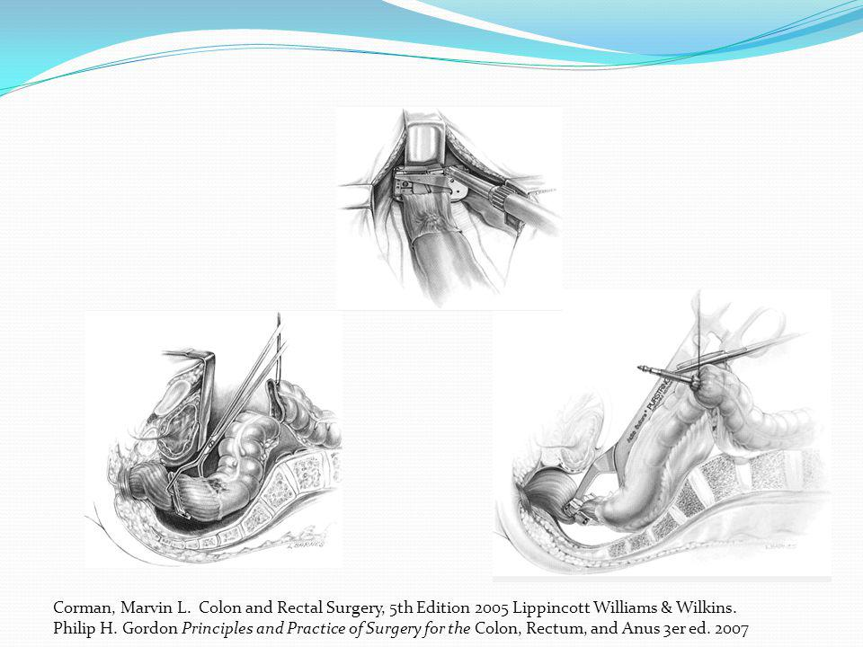 Corman, Marvin L. Colon and Rectal Surgery, 5th Edition 2005 Lippincott Williams & Wilkins. Philip H. Gordon Principles and Practice of Surgery for th