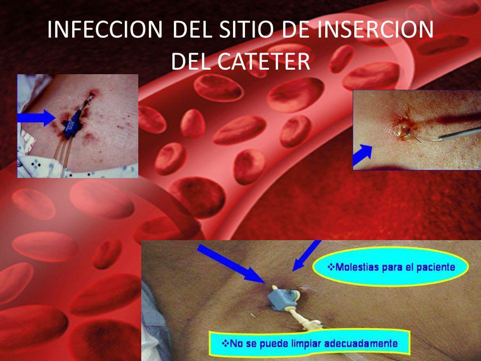 INFECCION DEL SITIO DE INSERCION DEL CATETER
