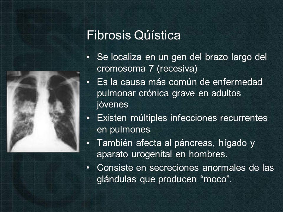 Fibrosis Qúística Se localiza en un gen del brazo largo del cromosoma 7 (recesiva) Es la causa más común de enfermedad pulmonar crónica grave en adultos jóvenes Existen múltiples infecciones recurrentes en pulmones También afecta al páncreas, hígado y aparato urogenital en hombres.