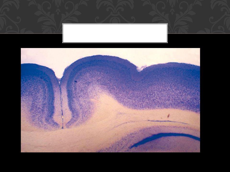 Síndrome mesial: en caso de que la lesión sea bilateral, se produce el llamado clásicamente mutismo acinético.