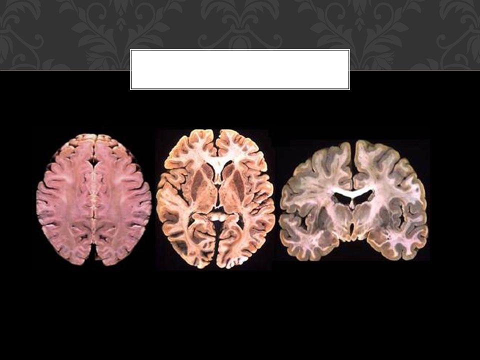 Síndrome dorsolateral: *Atención: la corteza prefrontal es la máxima responsable de nuestra capacidad atentiva.