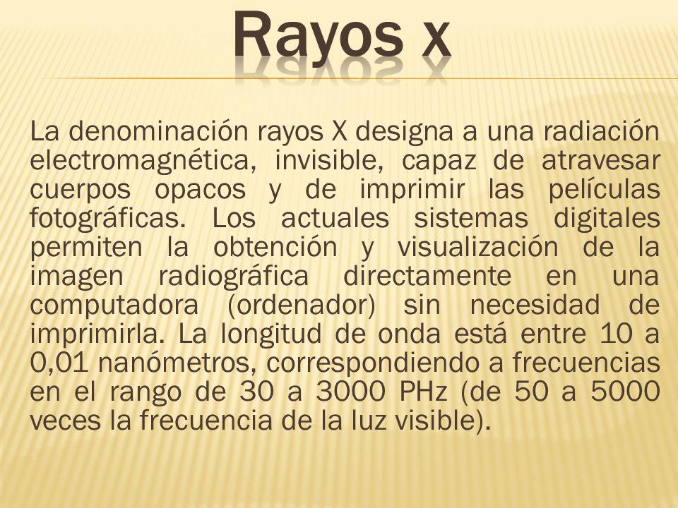 La denominación rayos X designa a una radiación electromagnética, invisible, capaz de atravesar cuerpos opacos y de imprimir las películas fotográfica
