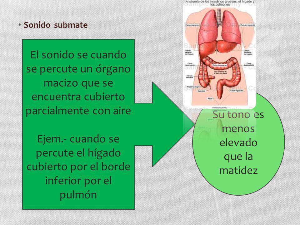 Sonido submate El sonido se cuando se percute un órgano macizo que se encuentra cubierto parcialmente con aire Ejem.- cuando se percute el hígado cubi