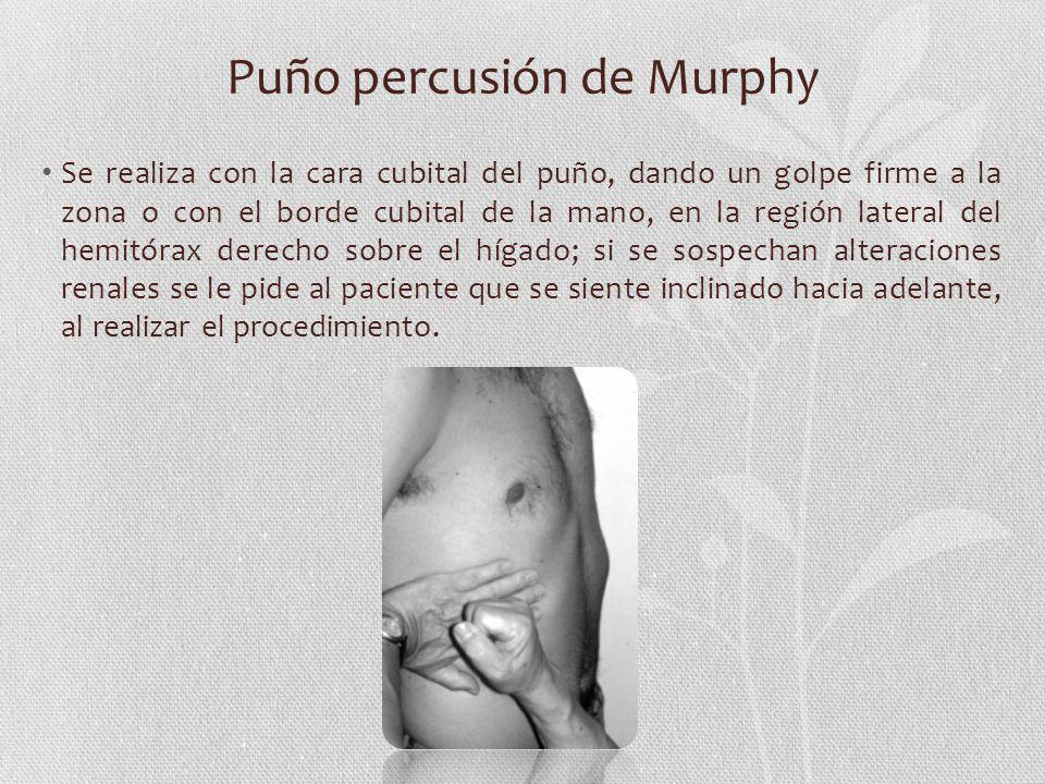 Puño percusión de Murphy Se realiza con la cara cubital del puño, dando un golpe firme a la zona o con el borde cubital de la mano, en la región later