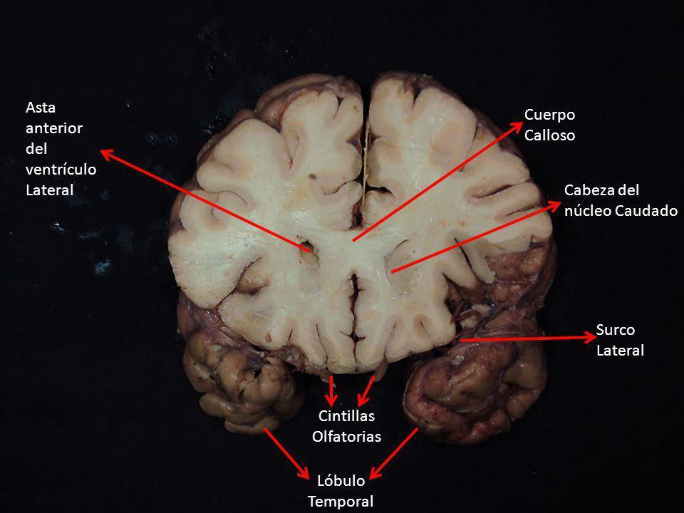 Asta anterior del ventrículo Lateral Cabeza del núcleo Caudado Surco Lateral Cuerpo Calloso Lóbulo Temporal Cintillas Olfatorias
