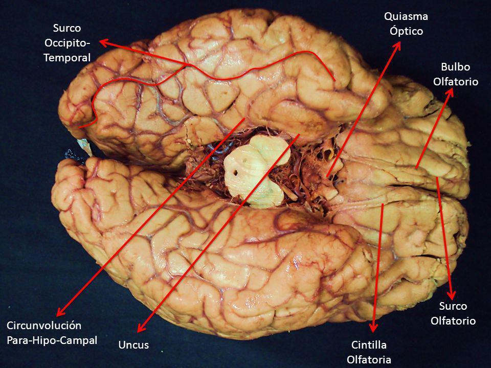 Quiasma Óptico Cintilla Olfatoria Bulbo Olfatorio Surco Olfatorio Surco Occipito- Temporal Uncus Circunvolución Para-Hipo-Campal