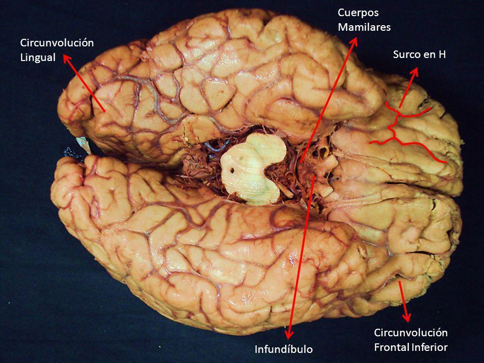 Surco en H Circunvolución Frontal Inferior Circunvolución Lingual Infundíbulo Cuerpos Mamilares