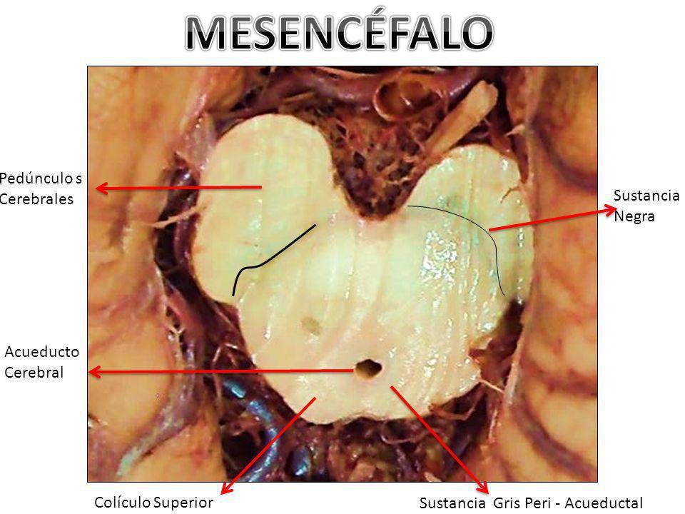 Pedúnculo s Cerebrales Acueducto Cerebral Sustancia Negra Sustancia Gris Peri - Acueductal Colículo Superior