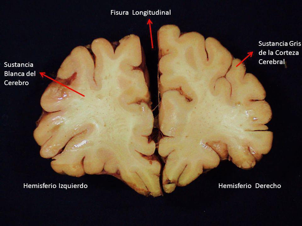 Fisura Longitudinal Hemisferio IzquierdoHemisferio Derecho Sustancia Gris de la Corteza Cerebral Sustancia Blanca del Cerebro