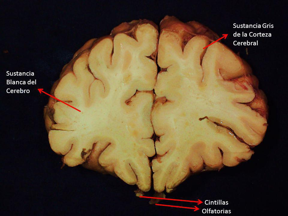 Sustancia Gris de la Corteza Cerebral Sustancia Blanca del Cerebro Cintillas Olfatorias