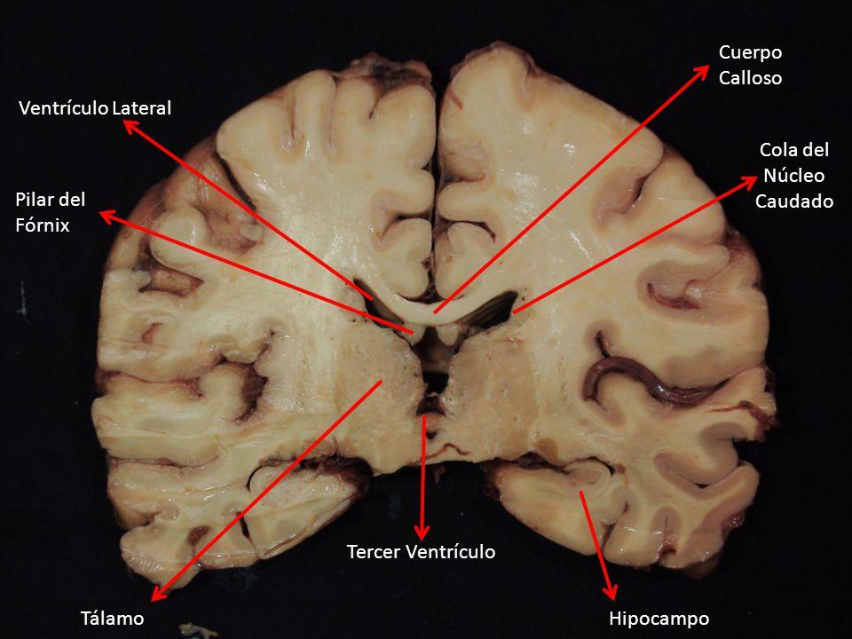 Cuerpo Calloso Pilar del Fórnix Ventrículo Lateral Tálamo Tercer Ventrículo Hipocampo Cola del Núcleo Caudado