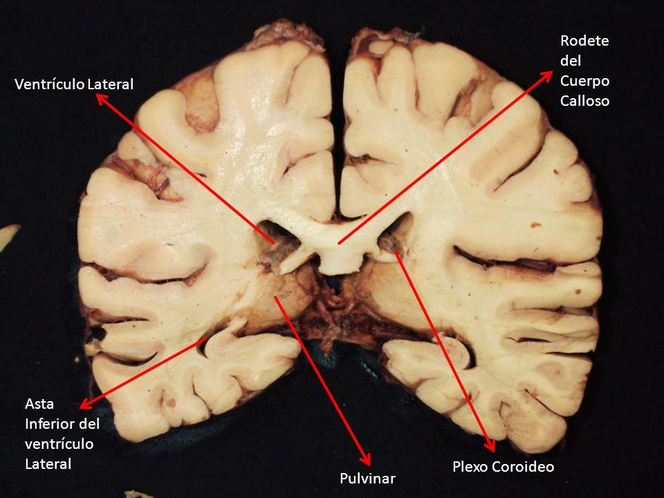 Rodete del Cuerpo Calloso Ventrículo Lateral Plexo Coroideo Pulvinar Asta Inferior del ventrículo Lateral