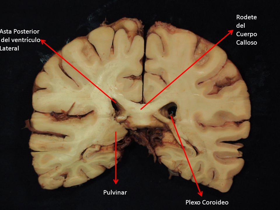 Asta Posterior del ventrículo Lateral Plexo Coroideo Fisura Calcarina Radiación Óptica