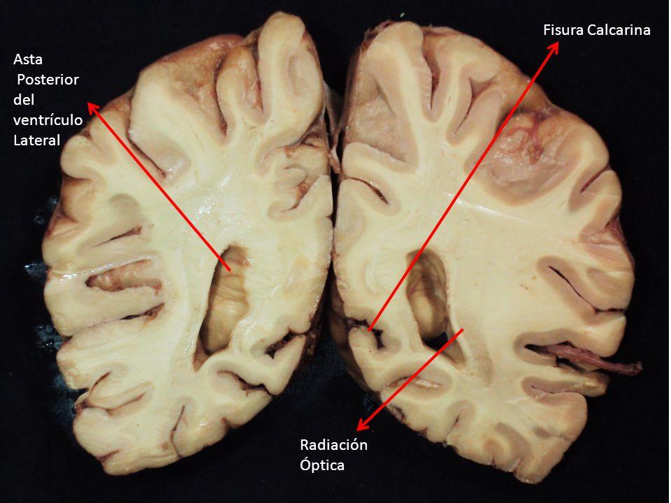 Asta Posterior del ventrículo Lateral Fisura Calcarina Radiación Óptica