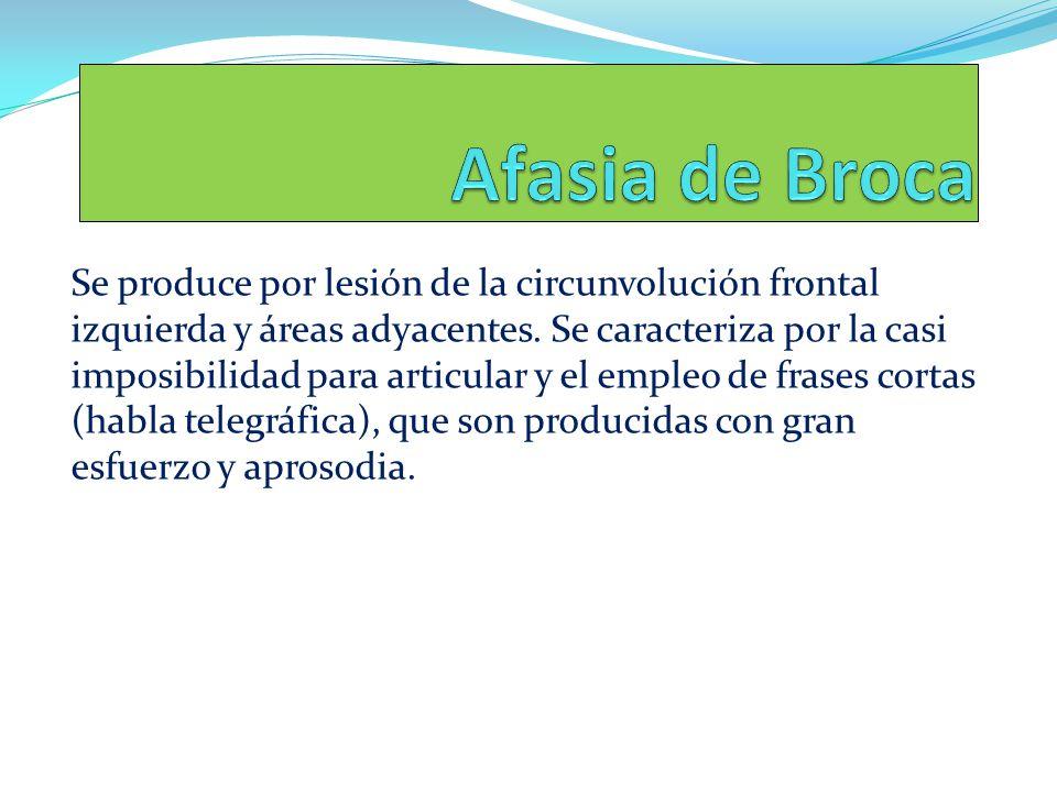 Se produce por lesión de la circunvolución frontal izquierda y áreas adyacentes. Se caracteriza por la casi imposibilidad para articular y el empleo d
