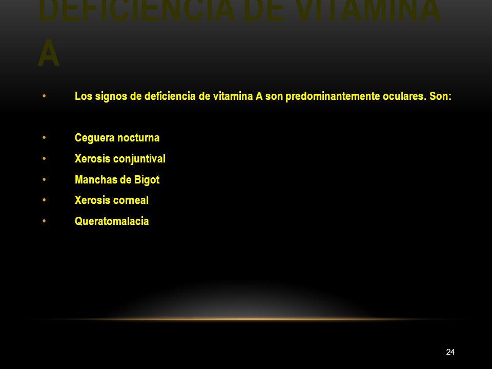 DEFICIENCIA DE VITAMINA A 24 Los signos de deficiencia de vitamina A son predominantemente oculares. Son: Ceguera nocturna Xerosis conjuntival Manchas