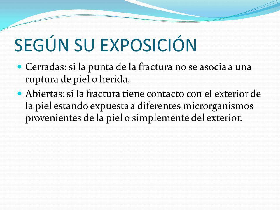 SEGÚN SU EXPOSICIÓN Cerradas: si la punta de la fractura no se asocia a una ruptura de piel o herida.