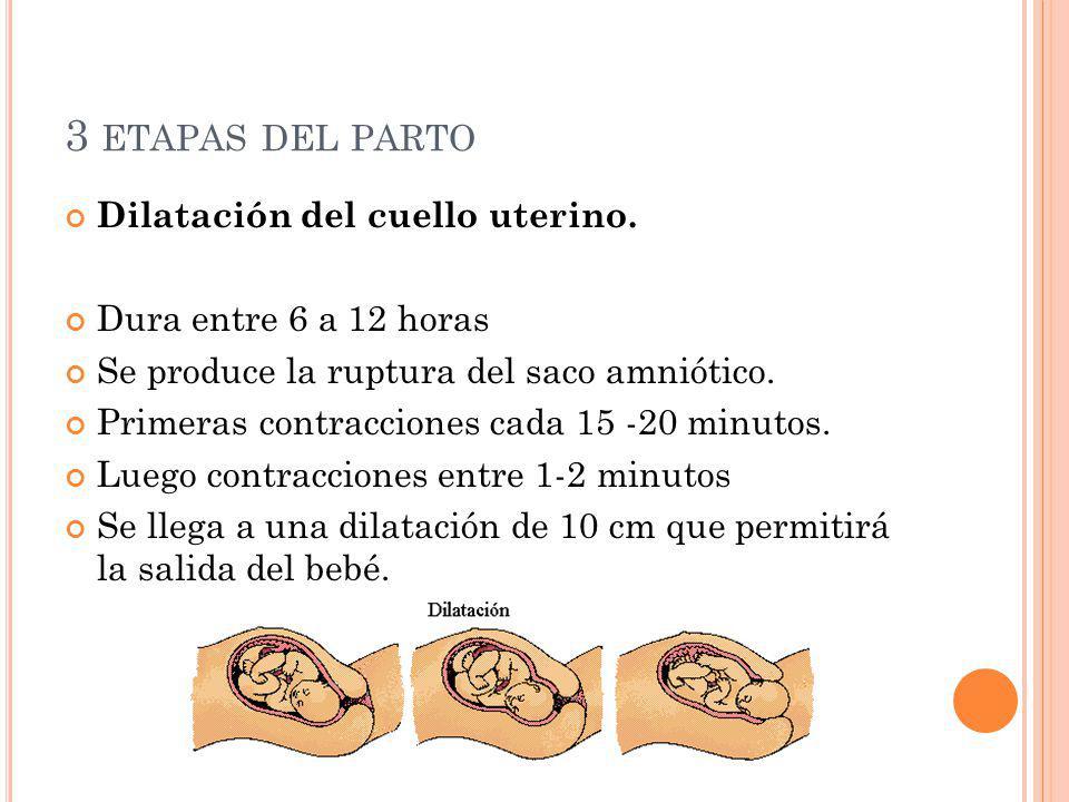 3 ETAPAS DEL PARTO Dilatación del cuello uterino. Dura entre 6 a 12 horas Se produce la ruptura del saco amniótico. Primeras contracciones cada 15 -20