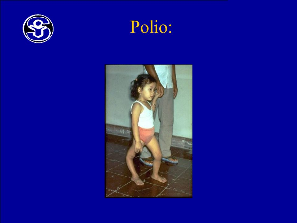 Polio: