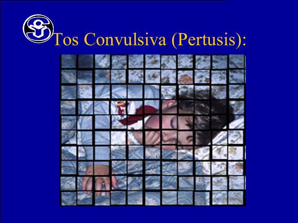 Tos Convulsiva (Pertusis):