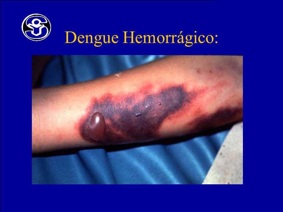 Dengue Hemorrágico:
