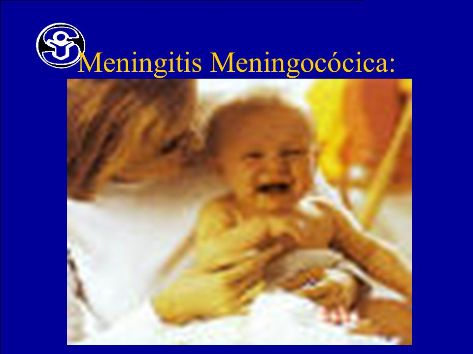 Meningitis Meningocócica: