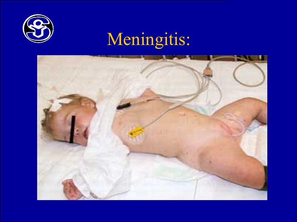 Meningitis: