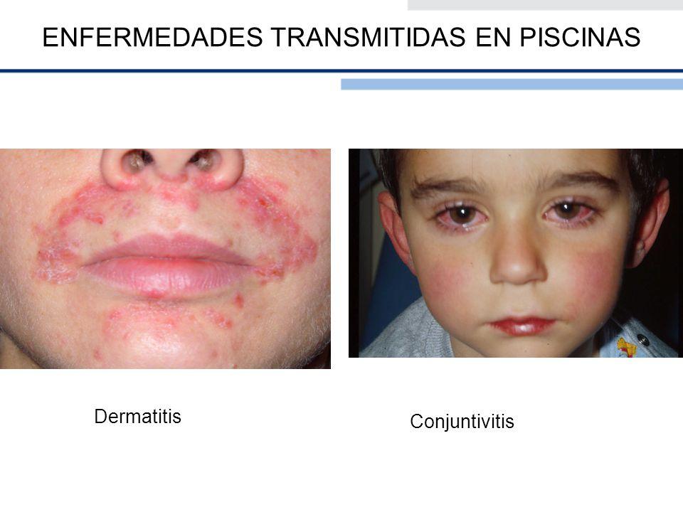 Dermatitis Conjuntivitis