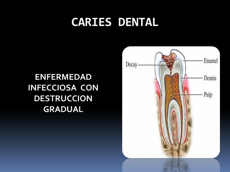 CARIES DENTAL ENFERMEDAD INFECCIOSA CON DESTRUCCION GRADUAL