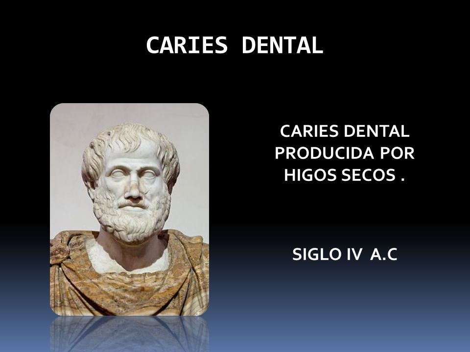 CARIES DENTAL CARIES DENTAL PRODUCIDA POR HIGOS SECOS. SIGLO IV A.C
