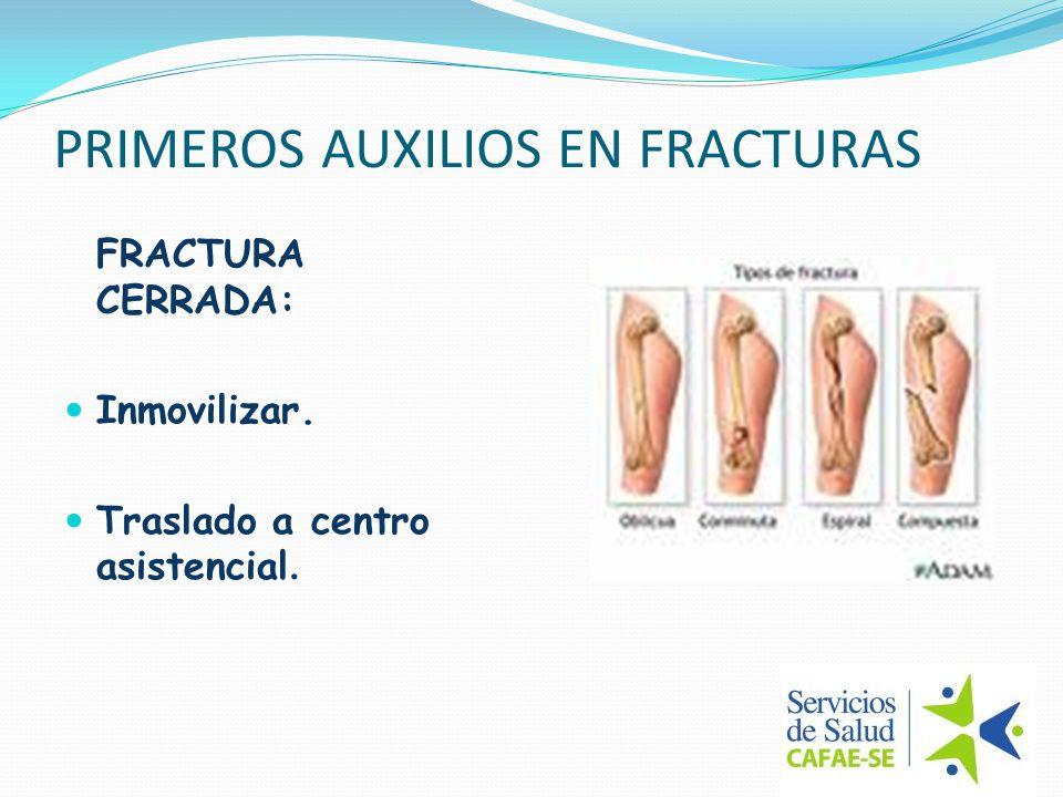 PRIMEROS AUXILIOS EN FRACTURAS FRACTURA ABIERTA: Previo a la inmovilización, cubrir con apósito o paño limpio la herida.