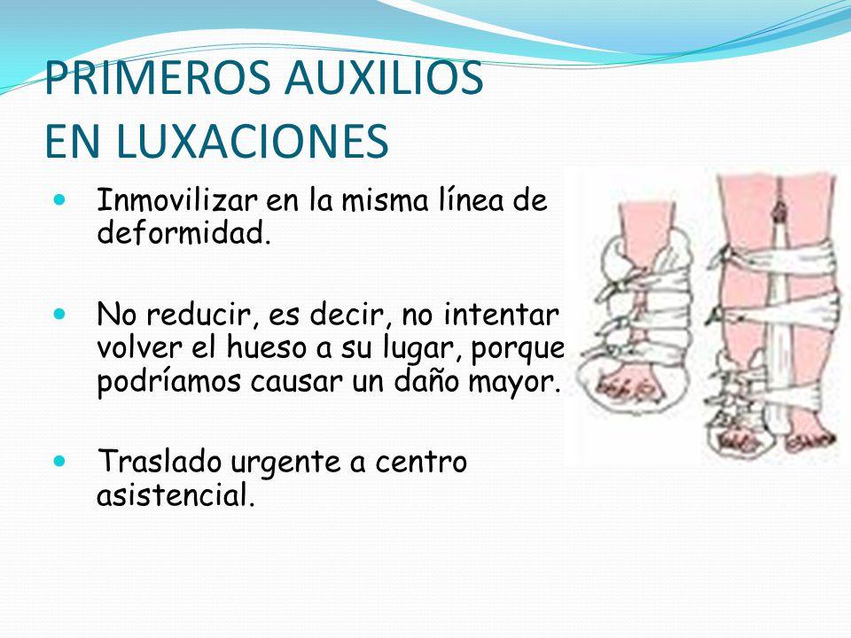 ESGUINCE Es la lesión que afecta a los ligamentos de una articulación, cuando esta realiza esfuerzos más allá de los límites normales.