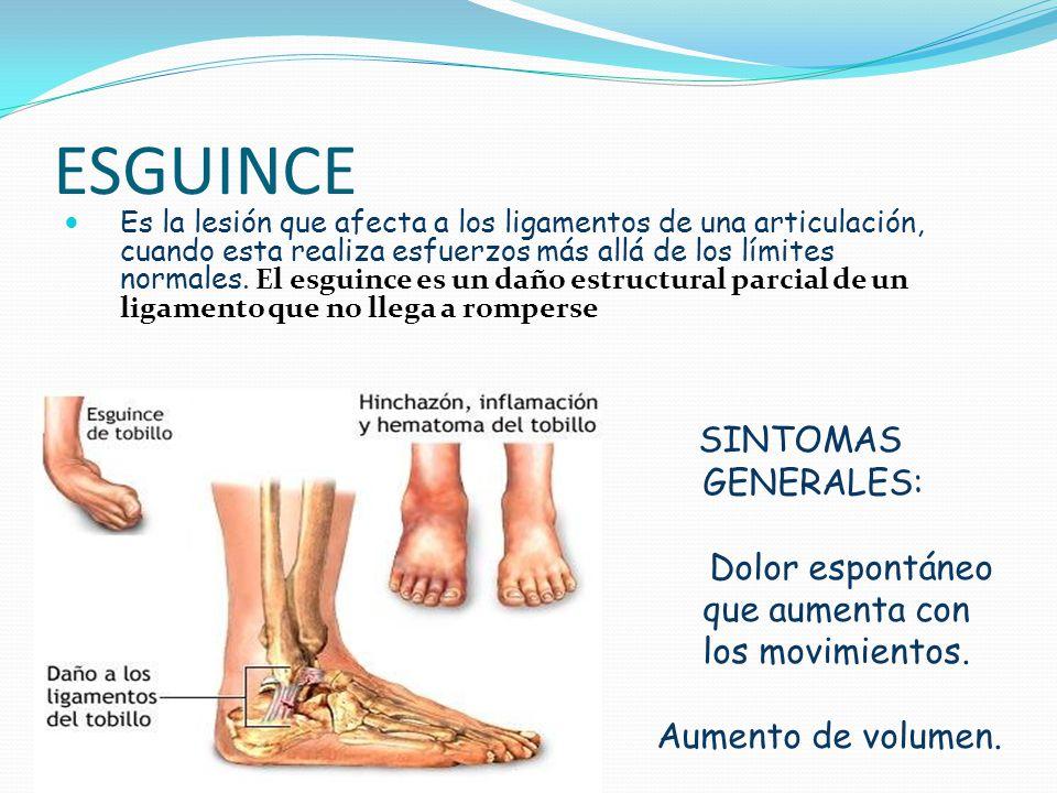 ESGUINCE Es la lesión que afecta a los ligamentos de una articulación, cuando esta realiza esfuerzos más allá de los límites normales. El esguince es