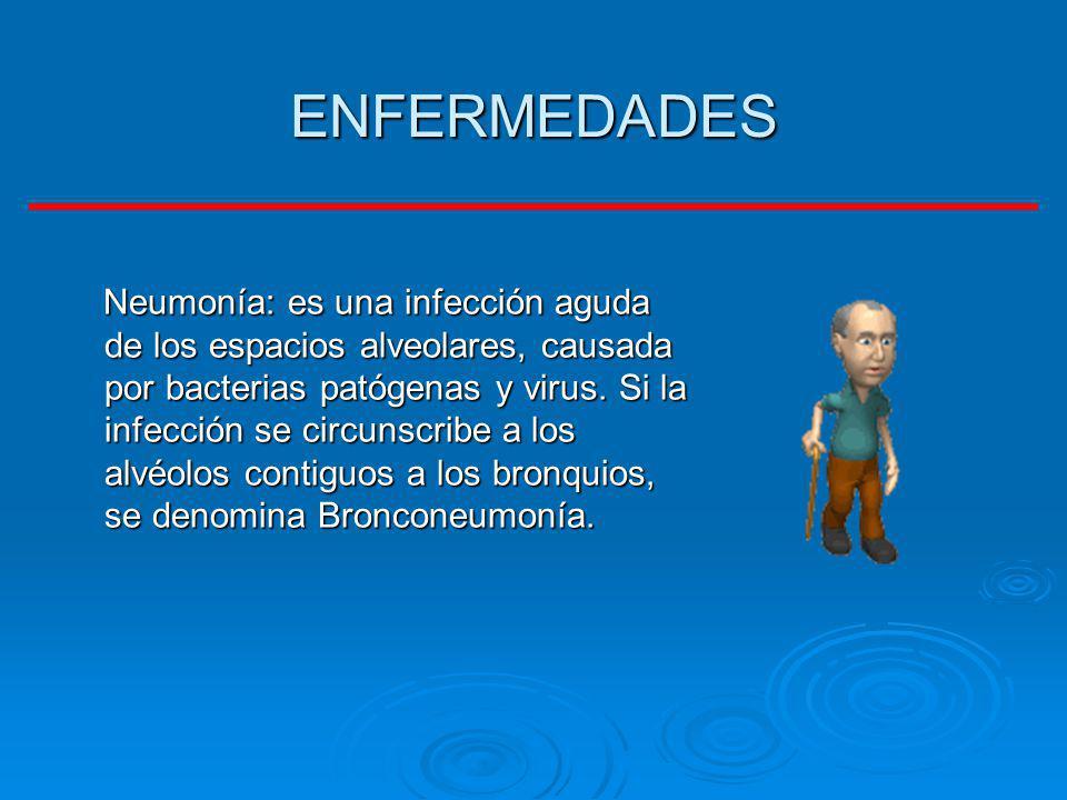ENFERMEDADES Neumonía: es una infección aguda de los espacios alveolares, causada por bacterias patógenas y virus. Si la infección se circunscribe a l
