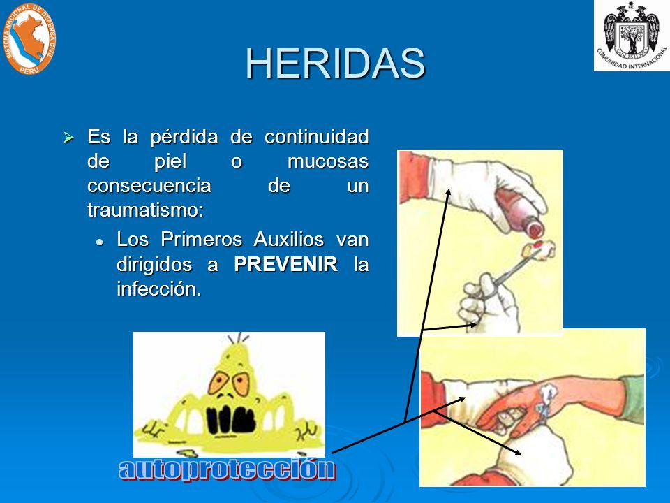 HERIDAS Es la pérdida de continuidad de piel o mucosas consecuencia de un traumatismo: Es la pérdida de continuidad de piel o mucosas consecuencia de un traumatismo: Los Primeros Auxilios van dirigidos a PREVENIR la infección.