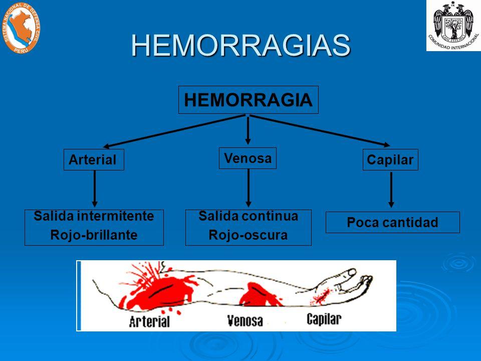 HEMORRAGIAS HEMORRAGIA Arterial Venosa Capilar Salida intermitente Rojo-brillante Salida continua Rojo-oscura Poca cantidad