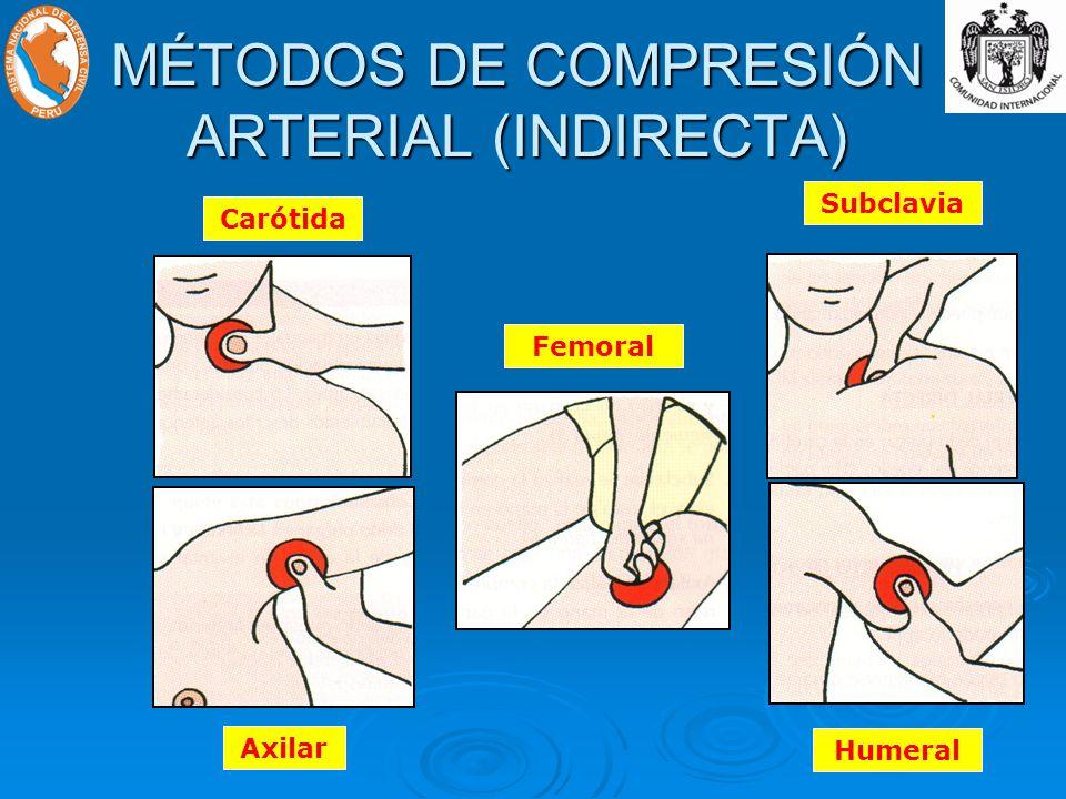 MÉTODOS DE COMPRESIÓN ARTERIAL (INDIRECTA) Carótida Axilar FemoralSubclavia Humeral
