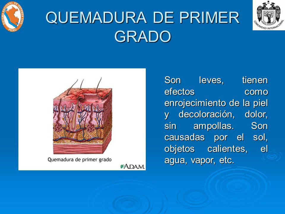 QUEMADURA DE PRIMER GRADO Son leves, tienen efectos como enrojecimiento de la piel y decoloración, dolor, sin ampollas.