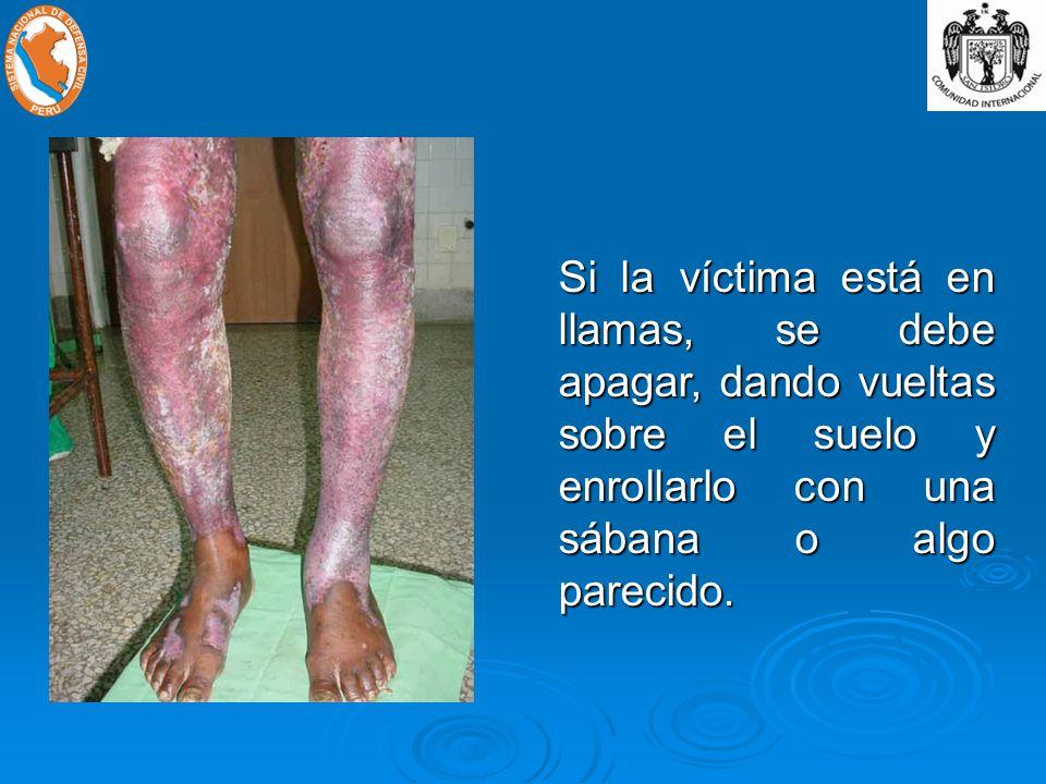 Si la víctima está en llamas, se debe apagar, dando vueltas sobre el suelo y enrollarlo con una sábana o algo parecido.
