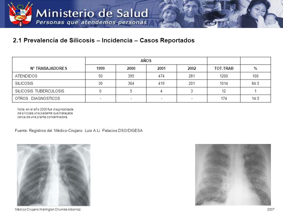 Nº TRABAJADORES AÑOS 1999200020012002TOT.TRAB% ATENDIDOS503954742811200100 SILICOSIS30364419201101484.5 SILICOSIS TUBERCULOSIS0543121 OTROS DIAGNOSTIC