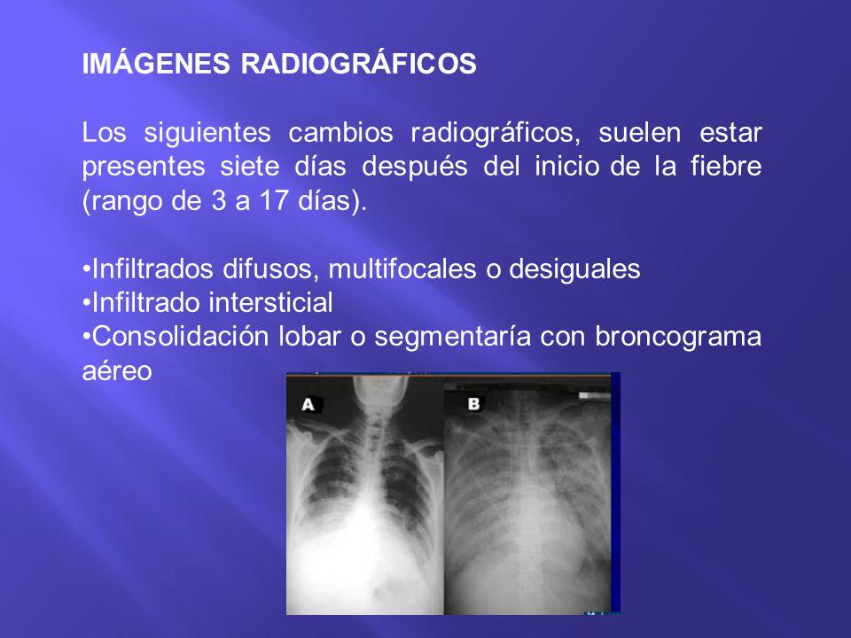IMÁGENES RADIOGRÁFICOS Los siguientes cambios radiográficos, suelen estar presentes siete días después del inicio de la fiebre (rango de 3 a 17 días).