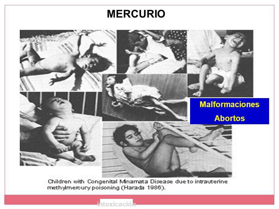 Malformaciones Abortos intoxicación MERCURIO