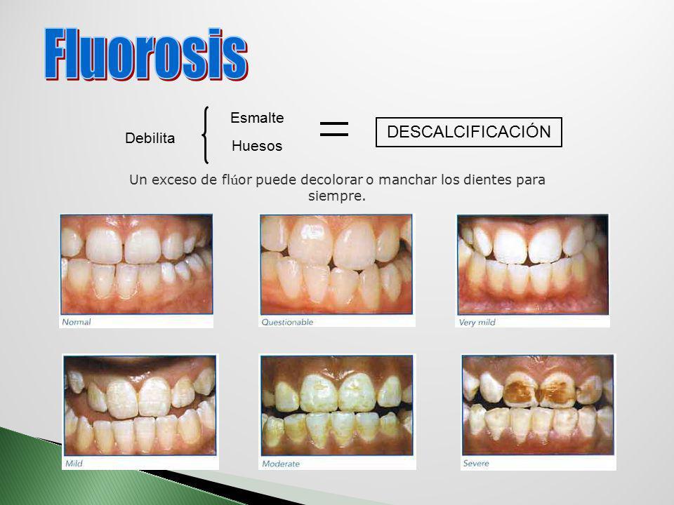 Debilita Esmalte Huesos DESCALCIFICACIÓN Un exceso de fl ú or puede decolorar o manchar los dientes para siempre.