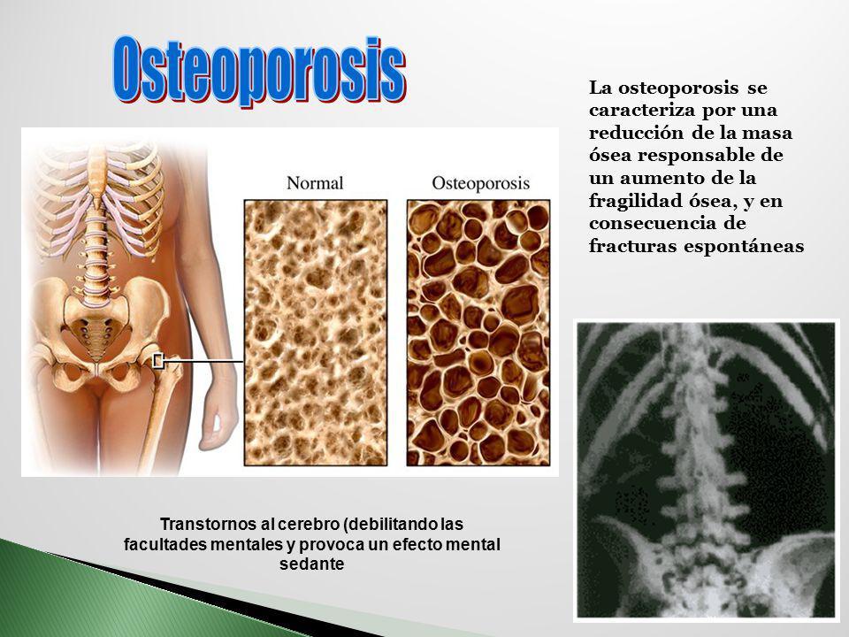 Transtornos al cerebro (debilitando las facultades mentales y provoca un efecto mental sedante La osteoporosis se caracteriza por una reducción de la