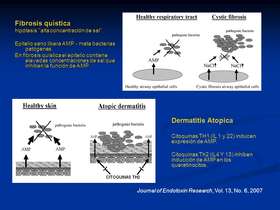 Fibrosis quística hipótesis