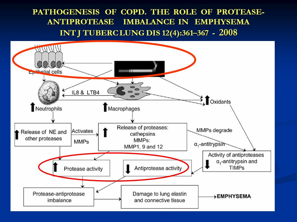 PATHOGENESIS OF COPD. THE ROLE OF PROTEASE- ANTIPROTEASE IMBALANCE IN EMPHYSEMA INT J TUBERC LUNG DIS 12(4):361–367 - 2008