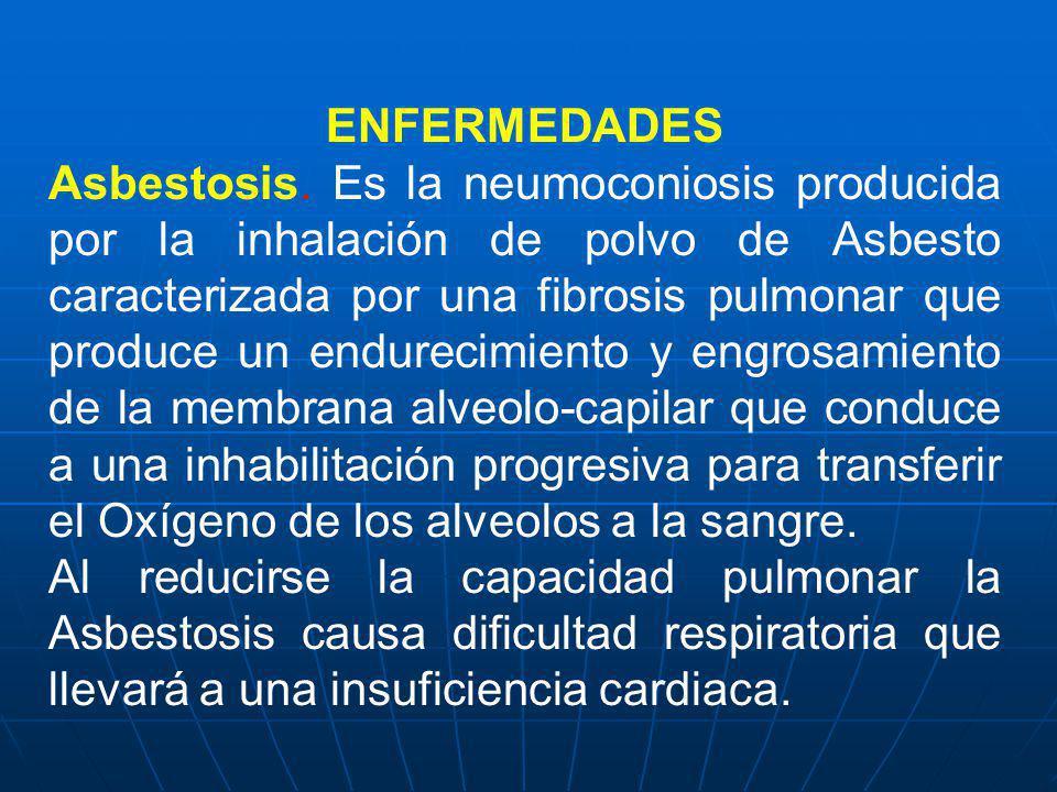 ENFERMEDADES Asbestosis. Es la neumoconiosis producida por la inhalación de polvo de Asbesto caracterizada por una fibrosis pulmonar que produce un en