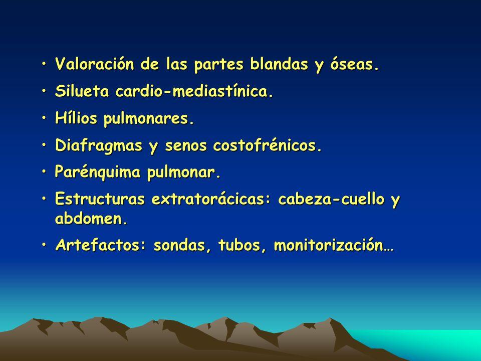 Valoración de las partes blandas y óseas.Valoración de las partes blandas y óseas. Silueta cardio-mediastínica.Silueta cardio-mediastínica. Hílios pul