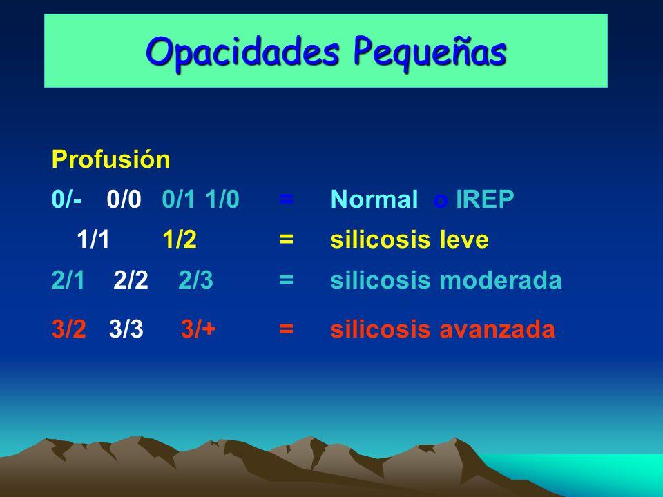 Opacidades Pequeñas Profusión 0/-0/00/1 1/0 = Normal o IREP 1/11/2 = silicosis leve 2/1 2/2 2/3 = silicosis moderada 3/2 3/3 3/+ = silicosis avanzada
